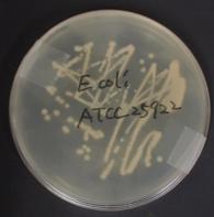 e_coli.png